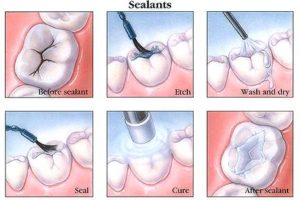 How do I Prevent Tooth Decay with Dental Sealants